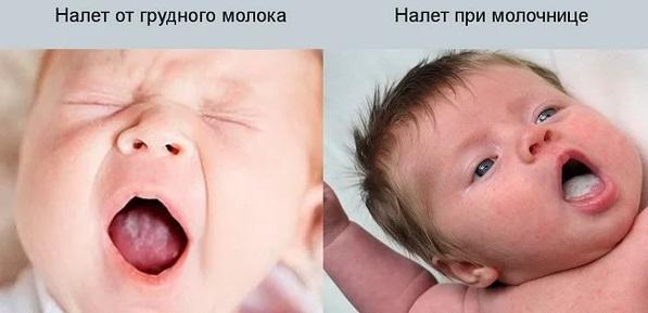 различия белого налета