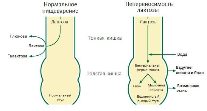 различия пищеварения при непереносимости лактозы
