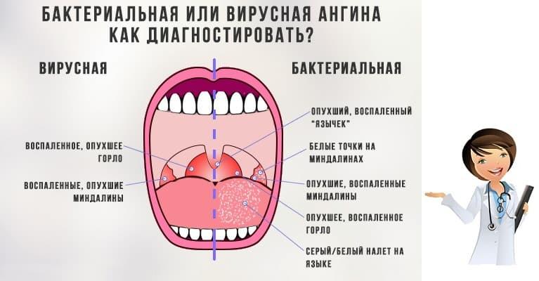 признаки заболевания ротовой полости